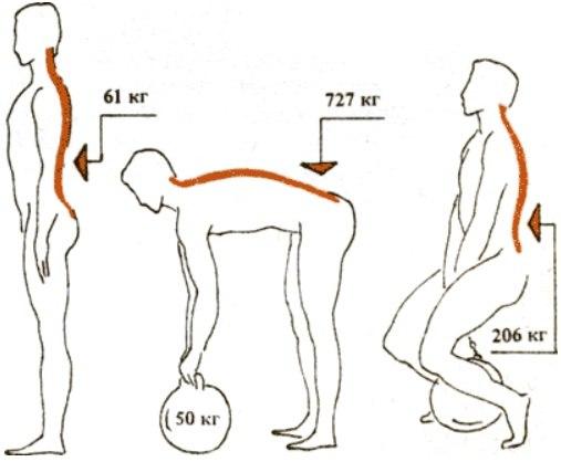 Можно ли поднимать тяжести при протрузии